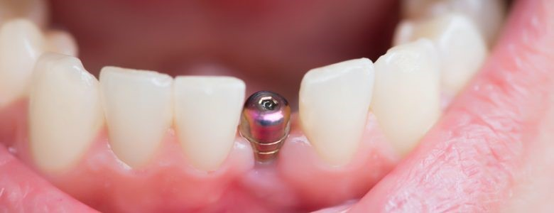 The Answers to Your Questions about Dental Implants