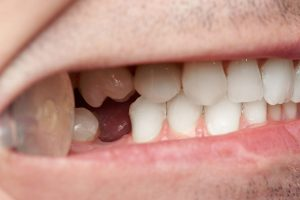 The consequences of malocclusion and its treatment