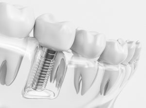 Dental Implant Process